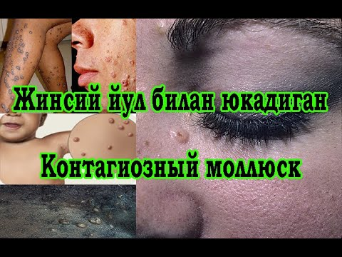 #Doktorspb Жинсий йул билан юкадиган Контагиозный моллюск