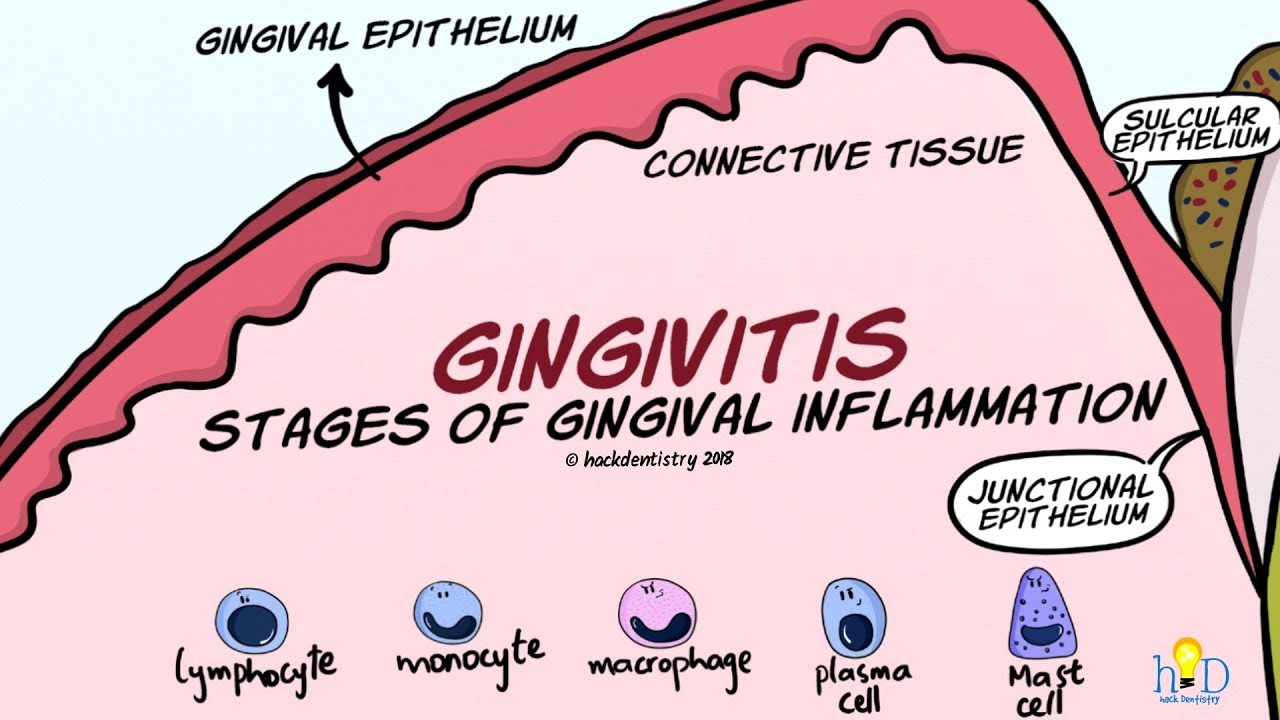 Gingivitis Stages Of Gingival Inflammation Youtube