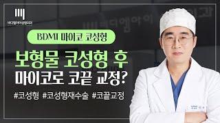 무보형물코수술 【비디엠아이성형외과】 마이코 성형, 강남…