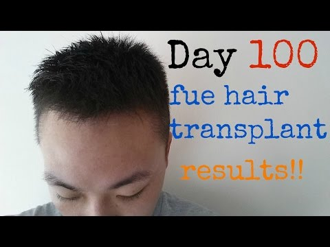 fue-hair-transplant-surgery-/-hair-transplant-before-and-after-/-day-100