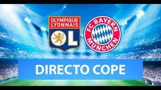 (SOLO AUDIO) Directo del Lyon 0-3 Bayern de Munich en Tiempo de Juego COPE