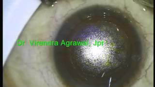 Flex Lasik - by Dr Virendra Agrawal Gold Medalist (AIIM), Jaipur