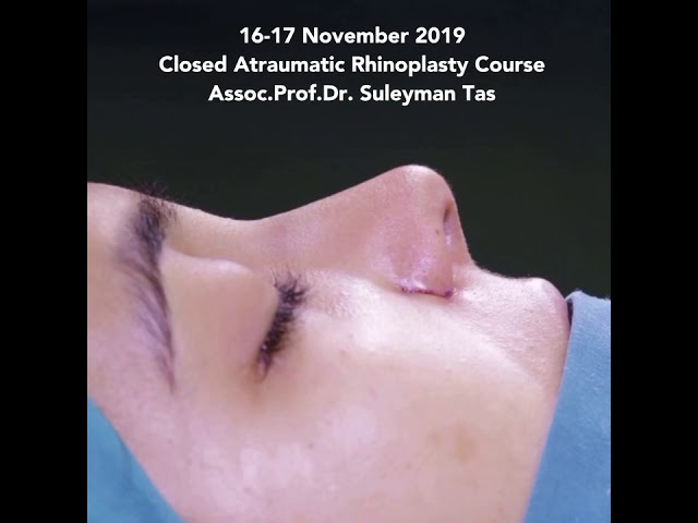 Closed Atraumatic Rhinoplasty Course | 16&17 November 2019