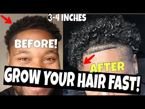 Hair vitamins For DOUBLE Growth! 2inches?