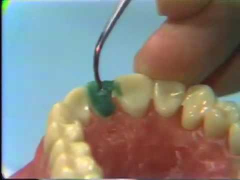Dental Anatomy: Waxing a Maxillary Central Incisor - YouTube