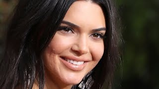 Kendall Jenner Reacts To Haters Dissing Her Golden Globes Acne | Hollywoodlife