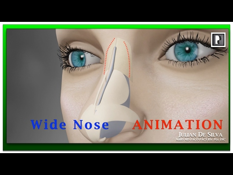Rhinoplasty Animation - How can a Wide nose be narrowed? video download