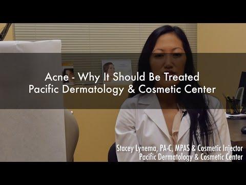 Acne Treatment | Acne Scar Removal Seattle WA | Renton WA