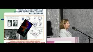 Лечение рака шейки матки IB2 и IIA2 стадий. Лучевая/химиолучевая терапия