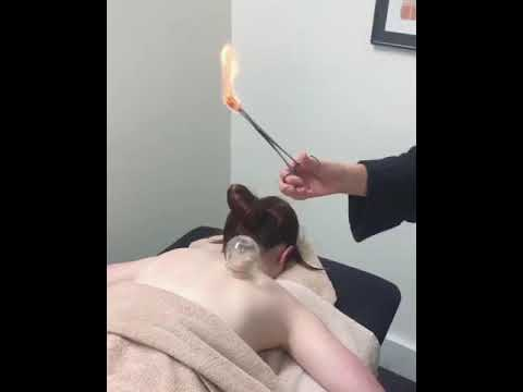 Healthspace acupuncturist performing cupping to help a lady in pain