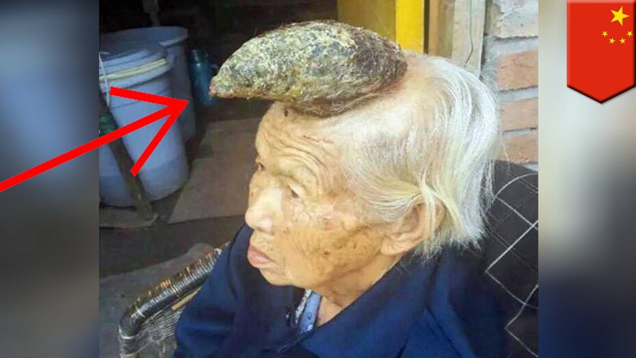 Femme Licorne Cette Chinoise De 87 Ans A Une Corne De 13