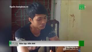 VTC14 | Nghệ An: Bệnh nhân tấn công nhân viên bệnh viện đang mang thai
