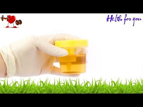 Видео Exame de urina leucocitos