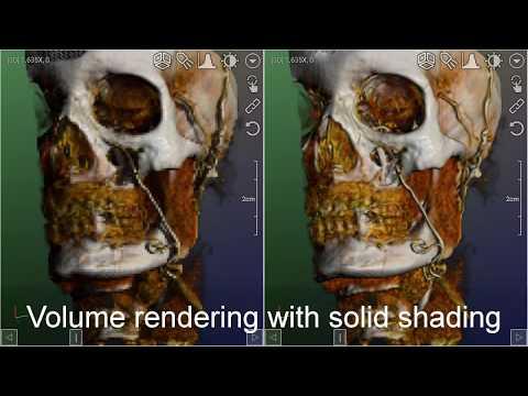 DroidRender - 3D DICOM viewer - Apps on Google Play