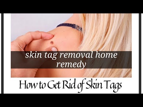 Skin tag removal home remedy | How to Get Rid of Skin Tags