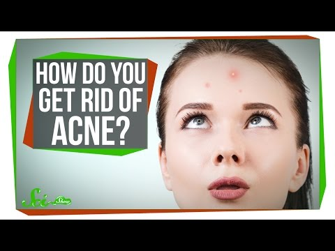 Video image: How do you get rid of acne?