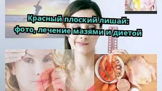 Красный плоский лишай: фото, лечение мазями и диетой