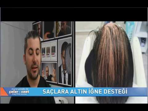 SAÇ SİMÜLASYONU FOX TV ÇALAR SAAT