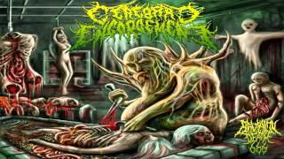 Cerebral Engorgement - Gastrointestinal Bleeding (2013) {Full-Album}