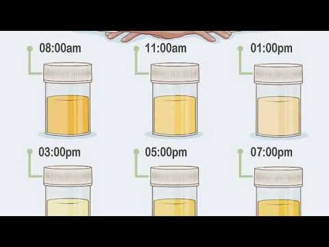 How To Test Iodine Levels