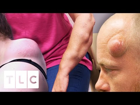 The Most Drastic Before & Afters | Dr Pimple Popper