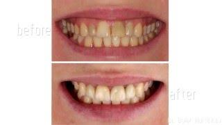 видео Металлокерамическая коронка на зуб: фото, установка, особенности, этапы изготовления и фиксации