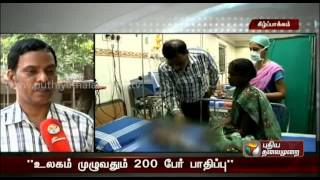 Child from Viluppuram suffering from rare disease of self-igniting fire from its own body