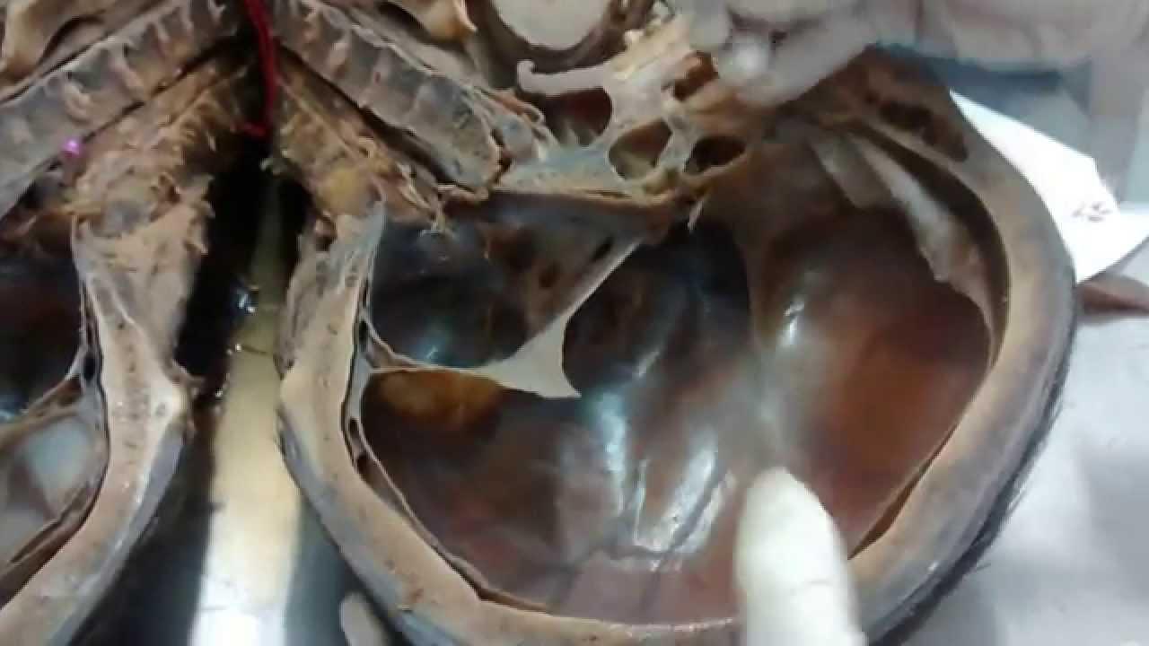 Anatomia de senos craneales UISS 2 Foramenes Craneales - YouTube