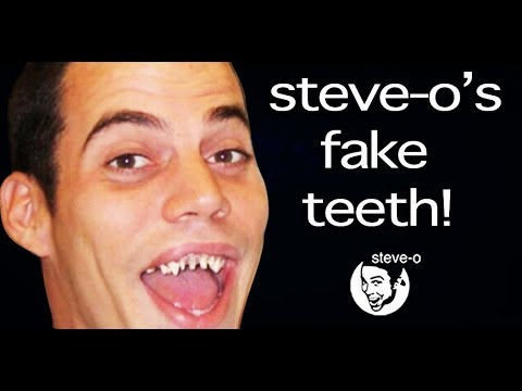 The Untold Story of Steve O's Fake Teeth | Steve-O