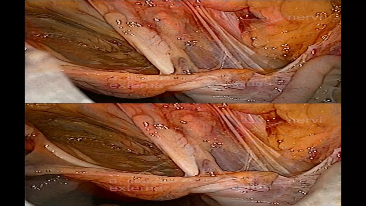 Laparoscopic 3d Anatomy Of Female Inguinal Area And Pelvis Youtube