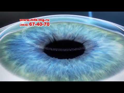 МТК Микрохирургия глаза Брянск. Лечение и восстановление зрения
