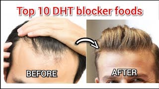 Top 10 DHT blocker foods 🔥🔥ll by Uttkarsh Agrawal #haircare