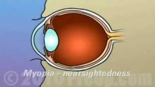 PreOp® Patient Education Lasik Laser Eye