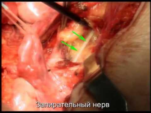 Операция тотальной мезоректумэктомии. Царьков П.В.