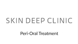 Peri-Oral Treatment