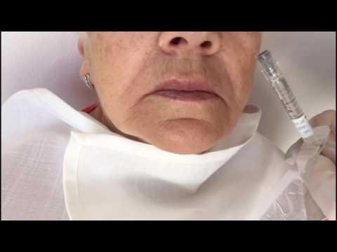 Контурная пластика губ - коррекция объема и контура филлерами