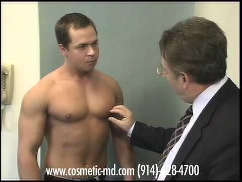 "Dr Mordcau Blau - NJ ,New Jersey .Gynecomastia Book ""Masculinity Defined,"" now on Amazon"