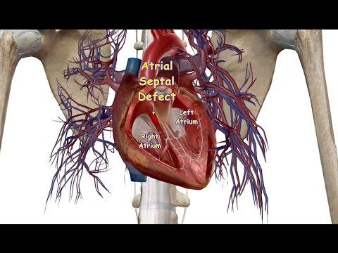 Minimally Invasive Ostium Secundum Atrial Septal Defect Closure