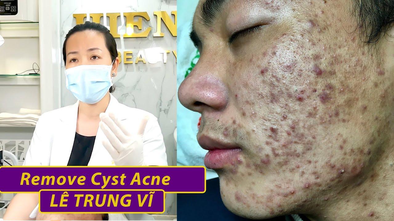 Remove Acne   Điều trị mụn hiệu quả số 1 TPHCM   Hiền Vân spa  Lê Trung Sỹ  536