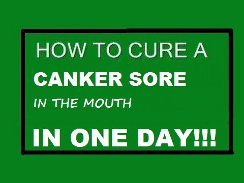 How to heal mouth ulcer