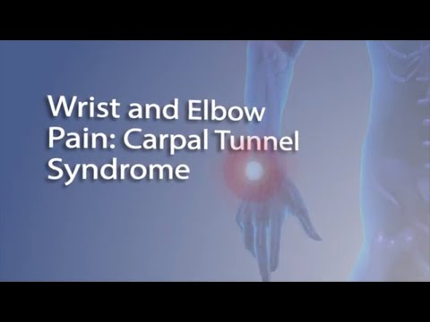 CarpalCarpalTunnel Syndrome – Symptoms, Causes And Treatment Dr. Srivatsa Subramanya, Orthopaedic su.