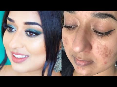 Affordable Full Coverage Foundation Routine Scars | Hindi | Simor Singh