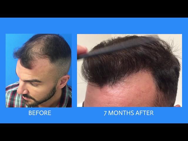 FUE Hair Transplant Case Study  - Dr Boden - Hartford, CT