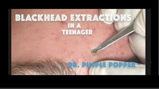 Comedone extractions for teenage acne. For medical education- NSFE