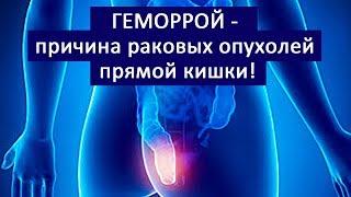 геморрой - причина раковых опухолей прямой кишки! #геморрой #лечениегеморроя #6