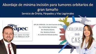 Abordaje de mínima invasión para tumores orbitarios de gran tamaño