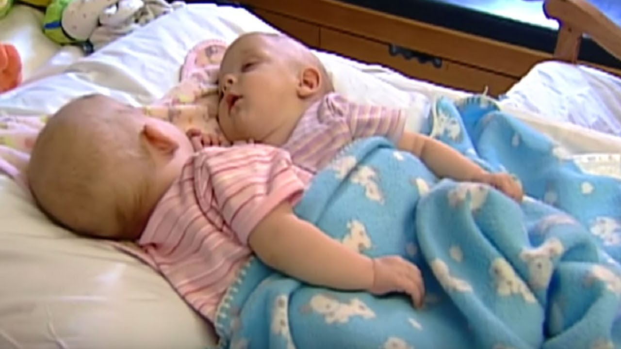 Conjoined Twins Separated Celebrate 10 Years Apart