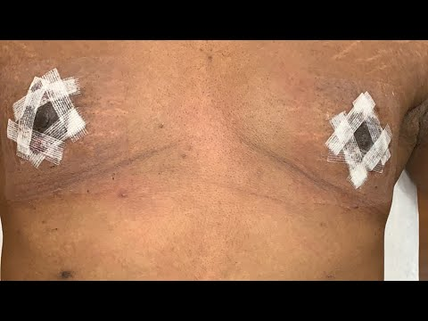 live-gynecomastia-surgery-(nipple-lift)---3-day-postoperative-follow-up-on-27-year-old-male-from-ny