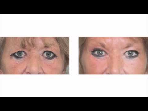 Healing Process | Brow Lift Surgery