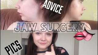 Download MY JAW SURGERY EXPERIENCE MP3 song and Music Video